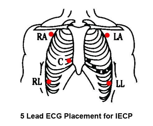 ECG Electrode placement in ECP
